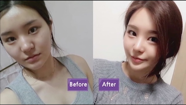 Examine This Report about Rhinoplasty