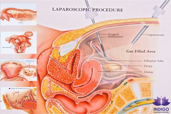 What is a laparoscopic surgery? - Quora