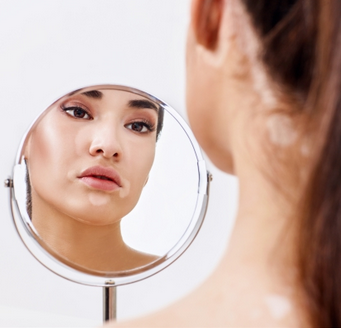 Download Vitiligo Different Colored Eyelashes Background