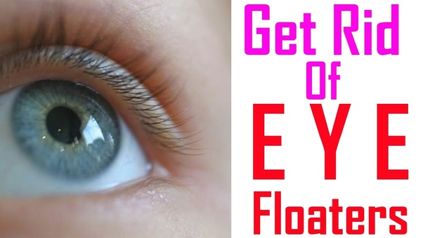 how to get rid of floaters without surgery