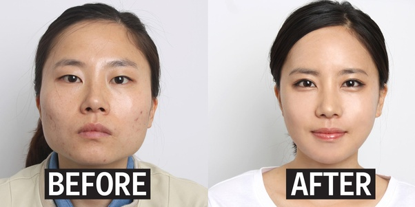 Why is double-eyelid surgery so popular with young women in