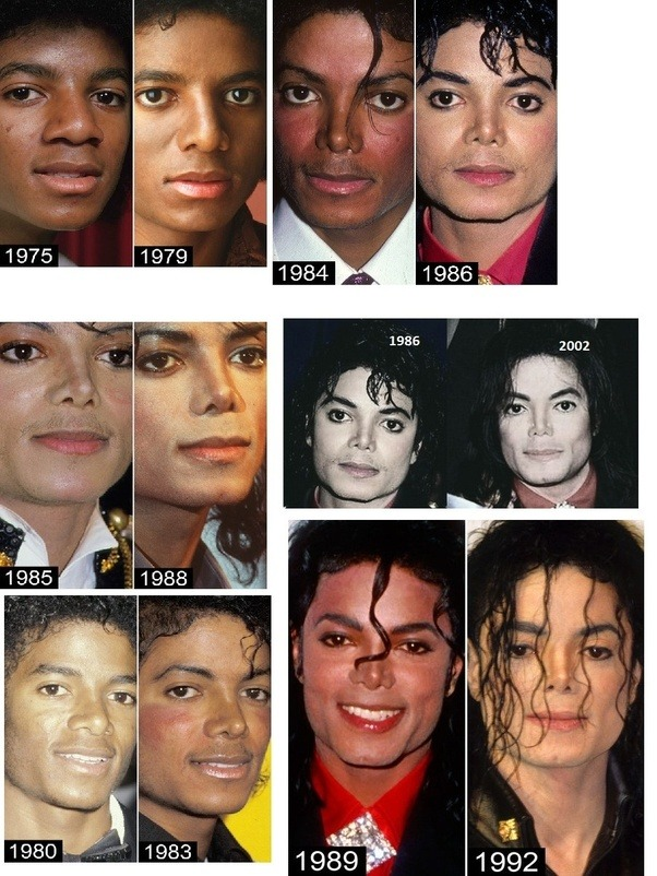 Why did Michael Jackson undergo so much plastic surgery ...