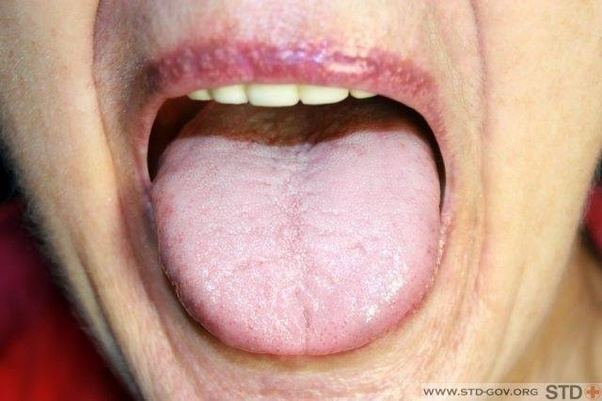 What stds come from oral-4192