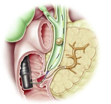 What Is Ercp And Open Surgery To Remove The Bile Duct