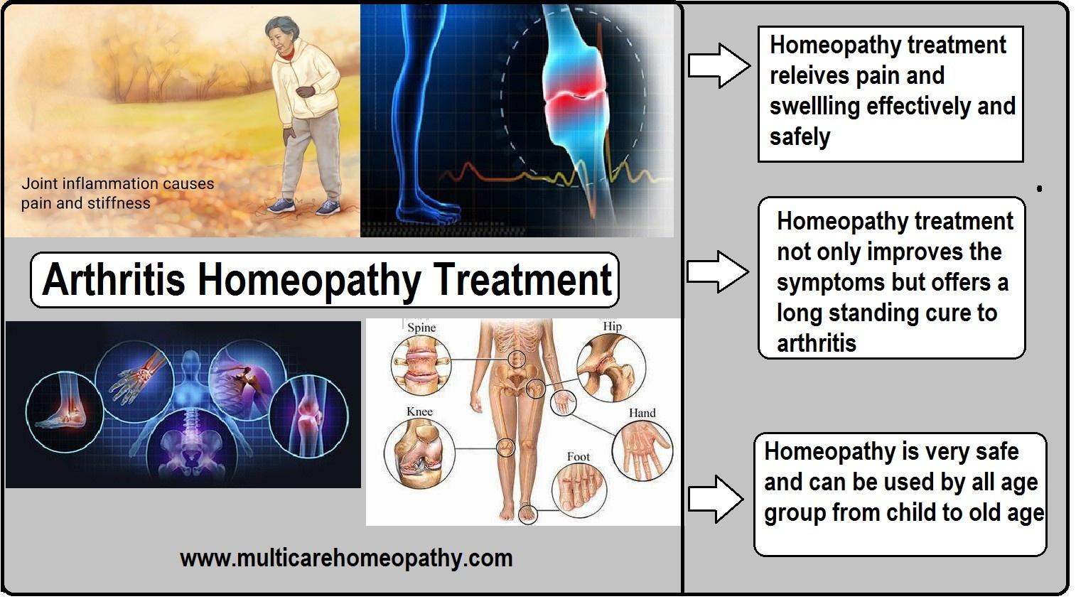 How is homeopathy helpful in the treatment of rheumatoid