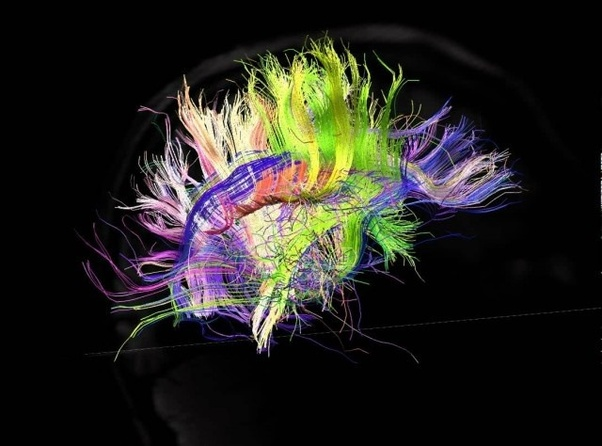 What Are The Neurological Differences In An Autistic Brain Compared To A Neurotypical Brain