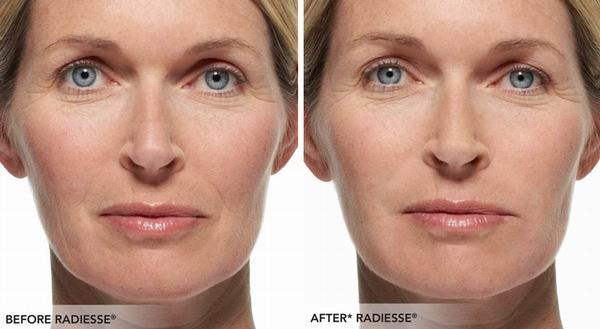 What are the benefits of dermal filler treatments? - Quora