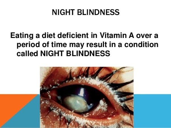 Night Blindness Is Caused By The Deficiancy Of Quora