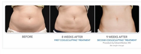 Ideal wellness and weight loss kingwood image 1