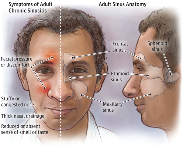 What are signs of a sinus infection? - Quora