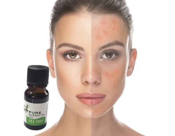Howto remove a pimple by using tea tree oil - Quora