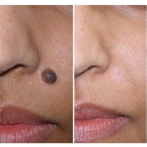 How much does mole removal treatment cost in India? Does it