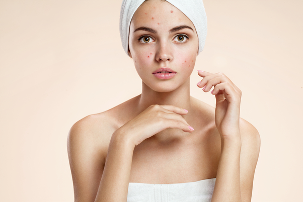 How To Remove Acne Scars Quora