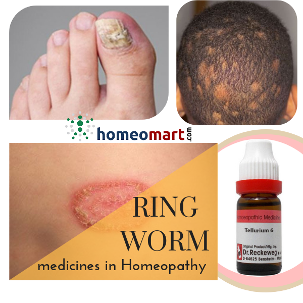 Which has the best cure for ringworm, homeopathy or