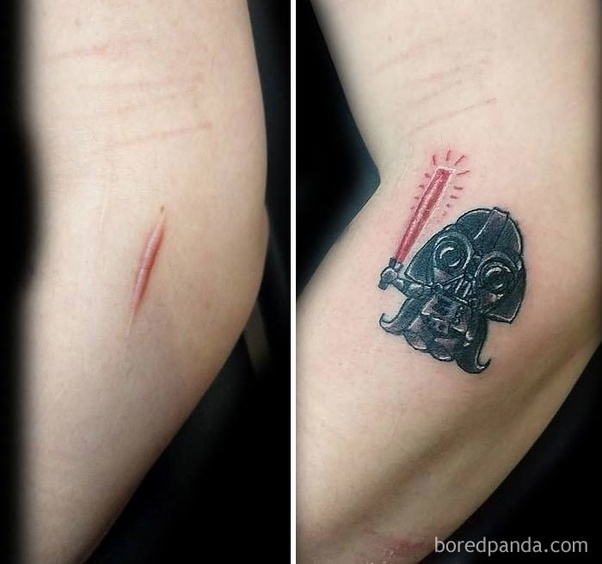 Is It Okay To Get Tattoo Over Stitch Marks Quora