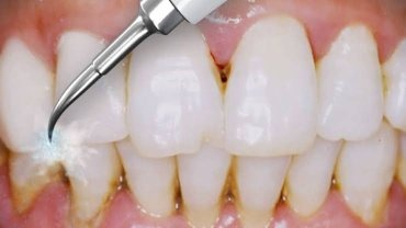 Does Scaling Of Teeth Hurt Quora
