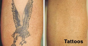 Which is best tattoo removal clinic in Delhi? - Quora