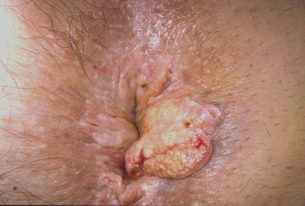 anus friction irritated sex skin