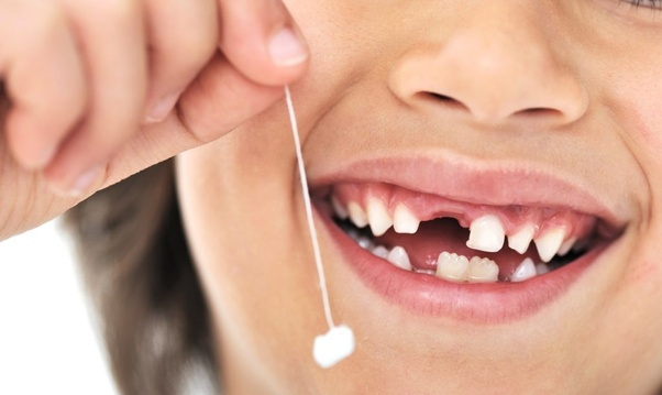 Can I drink tea and coffee after tooth extraction? - Quora