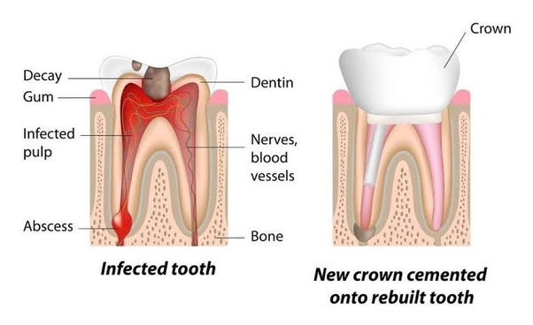 In general, how long will the tooth last after root canal ...