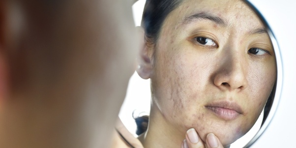 How are dark spots/marks removed from skin? - Quora