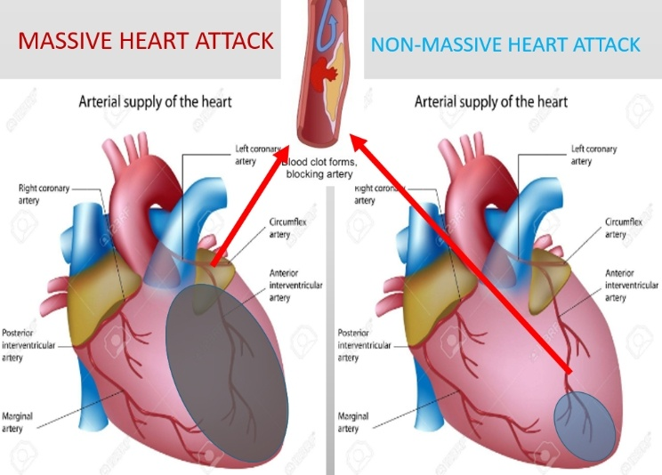 How Likely Are You To Survive A Massive Heart Attack Quora