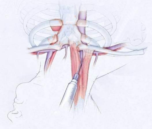 jugular vein pressure - 527×447