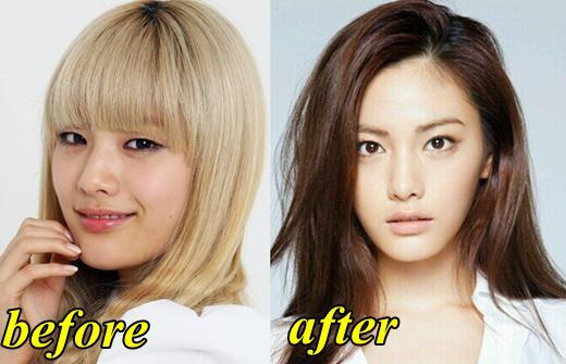 What Are The Most Popular Surgeries Or Facial Corrections Among K Pop Idols Quora