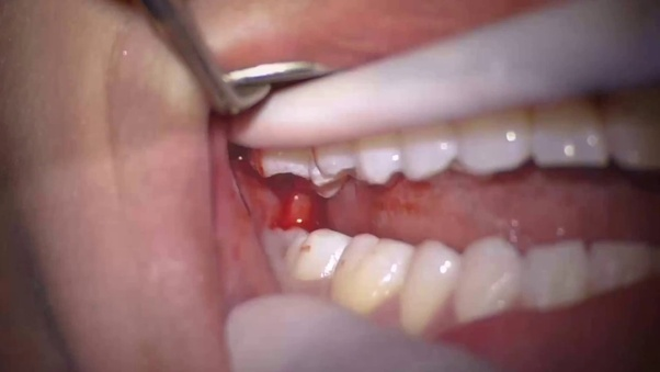 Wisdom Teeth Removal Cost In India Teethwalls
