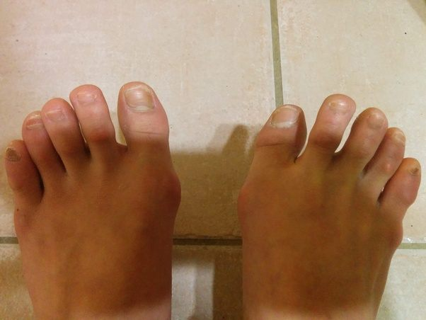 ugly feet Ballet dancers