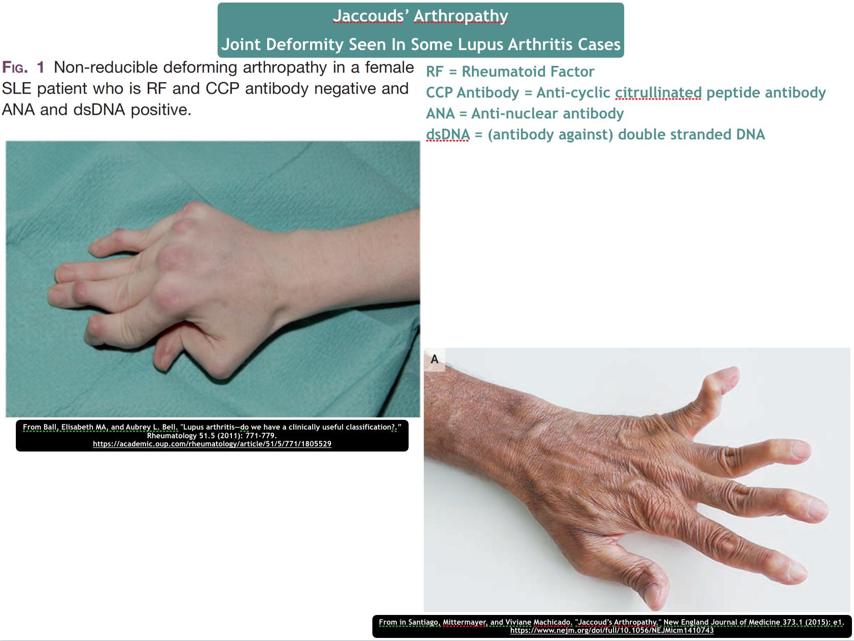 What are Lupus hands? - Quora