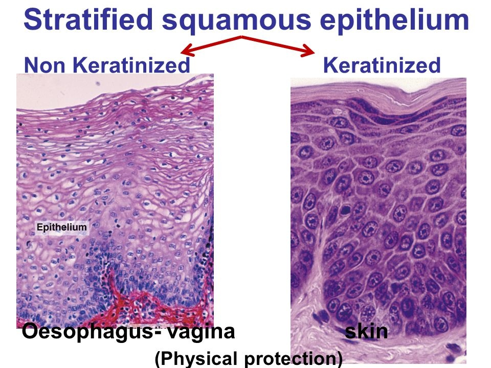 Image result for stratified squamous epithelium examples