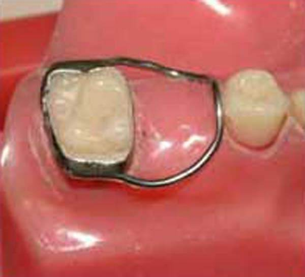 How Are Tooth Spacers Put In And Do They Hurt?