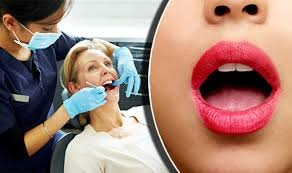Which is the best hospital for a tongue cancer surgery in