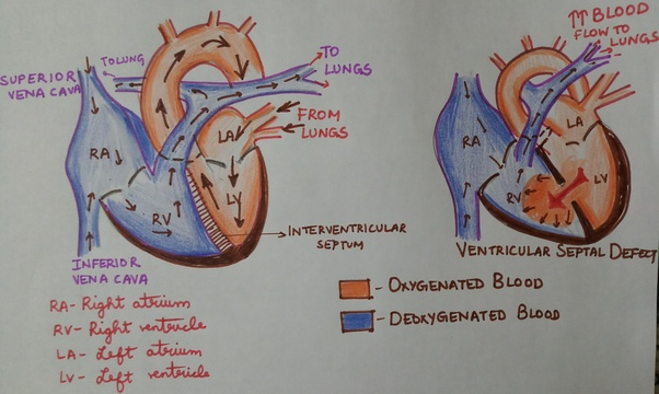 Oxygenated And Deoxygenated Blood In The Heart Diagram