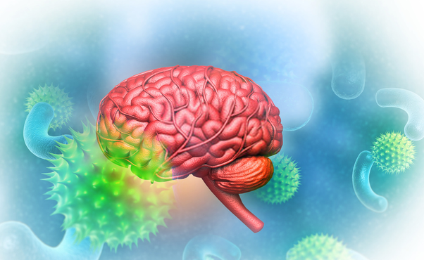 What Are The Symptoms Of Huntington S Disease Quora