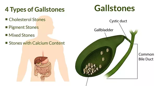 What is the main function of the gallbladder? - Quora
