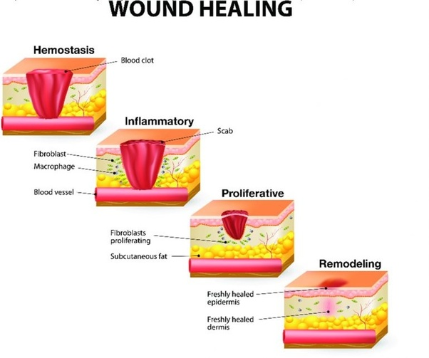 Why does it take so long for a cut in your gums to heal ...