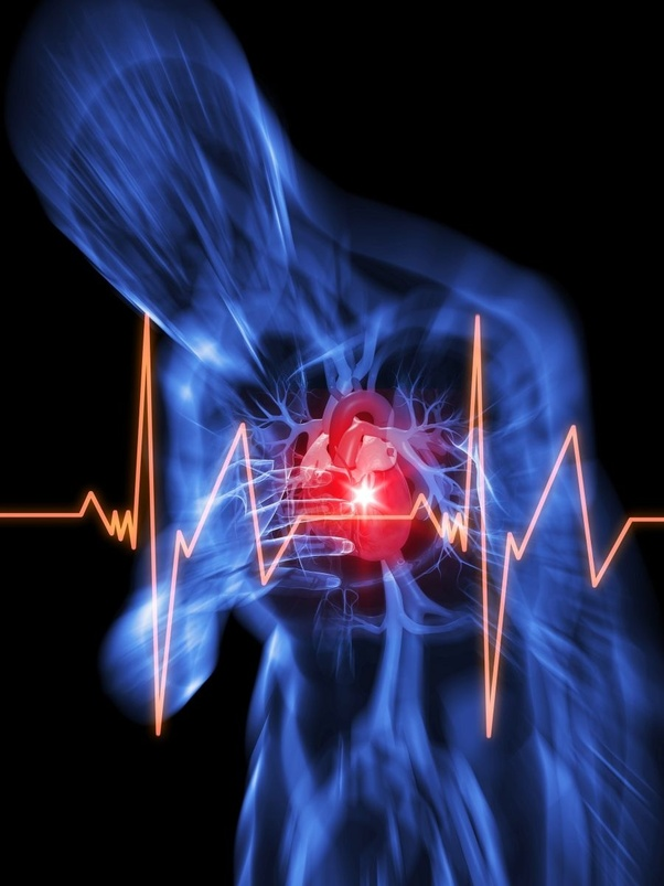 What is cardiac attack? - Quora
