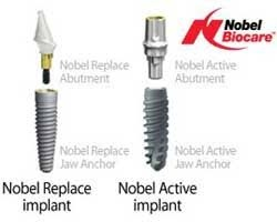Which is the best brand of dental implants? Why? - Quora