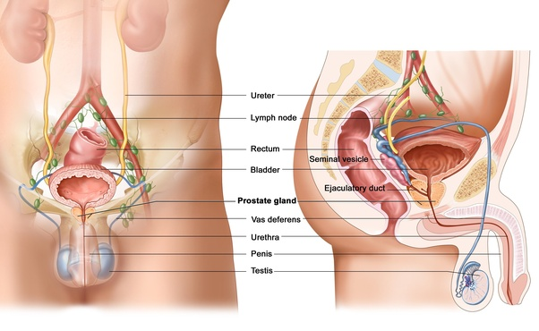 what causes prostate cancer