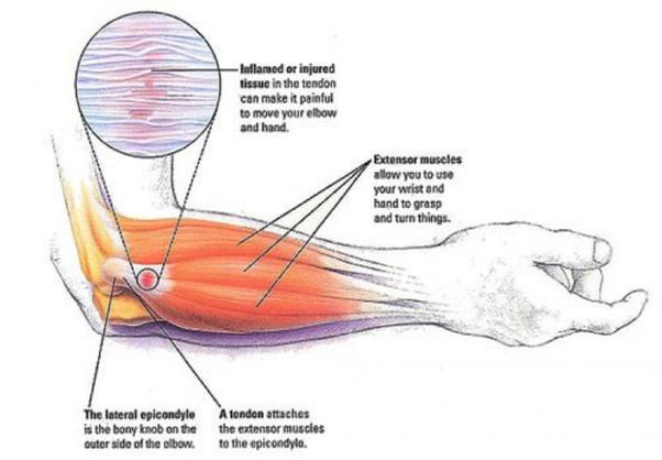 how long does tendinosis take to heal