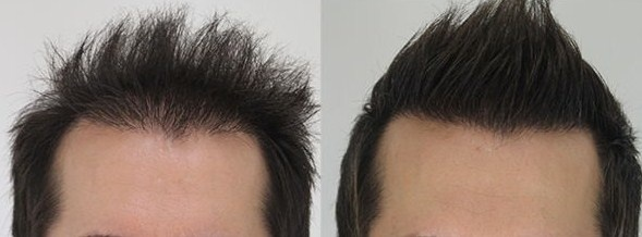 Is Hair Transplant In Turkey Worth It Quora