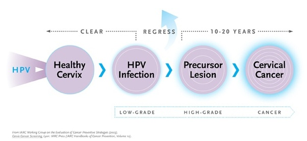 Hpv symptoms throat cancer Hpv cancer how long